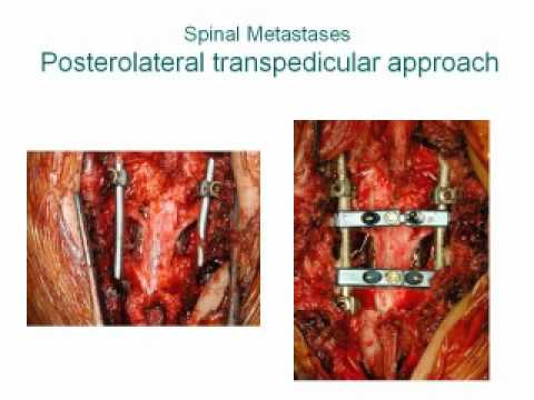 Posterior Vertebrectomy for Metastic High Thoracic Tumors