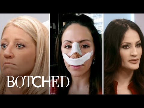5 Most Heartbreaking Nose Jobs | Botched | E!