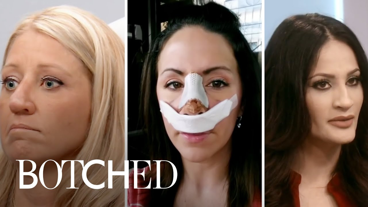 5 Most Heartbreaking Nose Jobs | Botched