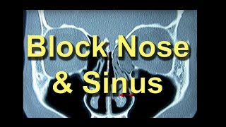 Understand why your nose & sinus is blocked