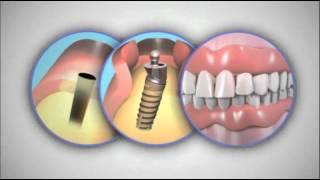 Полный съемный протез MIS(Полный съемный протез на имплантатах MIS. Демонстрационное видео для пациентов., 2012-06-09T10:45:40.000Z)