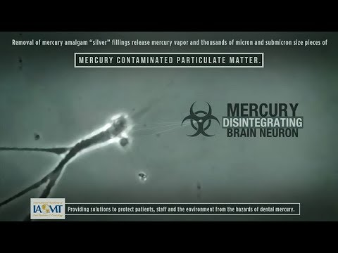 Mercury Poisoning Symptoms and Dental Amalgam Fillings