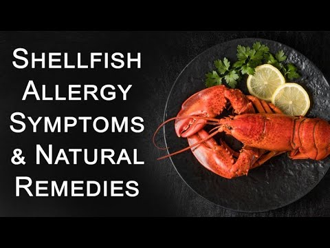 Shellfish Allergy Symptoms Effective Remedies Alternatives