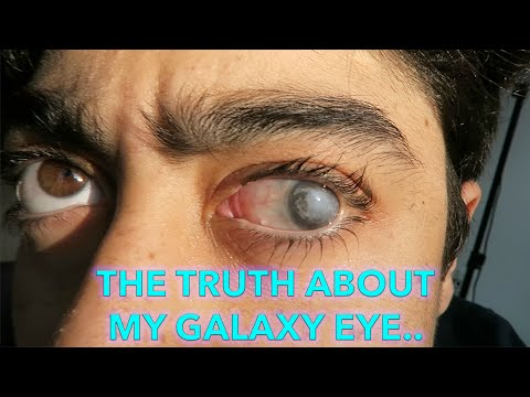 THE TRUTH ABOUT MY GALAXY EYE!!
