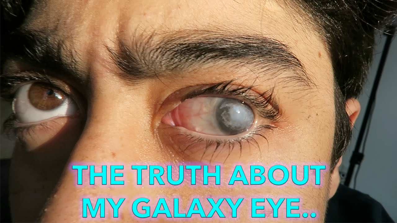 The Truth About My Galaxy Eye