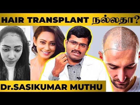 """hair-transplant-எவ்வளவு-நாளைக்குள்ள-பயன்-தரும்""---dr.sasikumar-muthu-|-hair-transplant-myths"