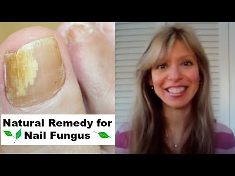 Cure Nail Fungus – A Natural Remedy/Treatment for Toenail Toe Nail and Fingernail Finger Nail Fungus