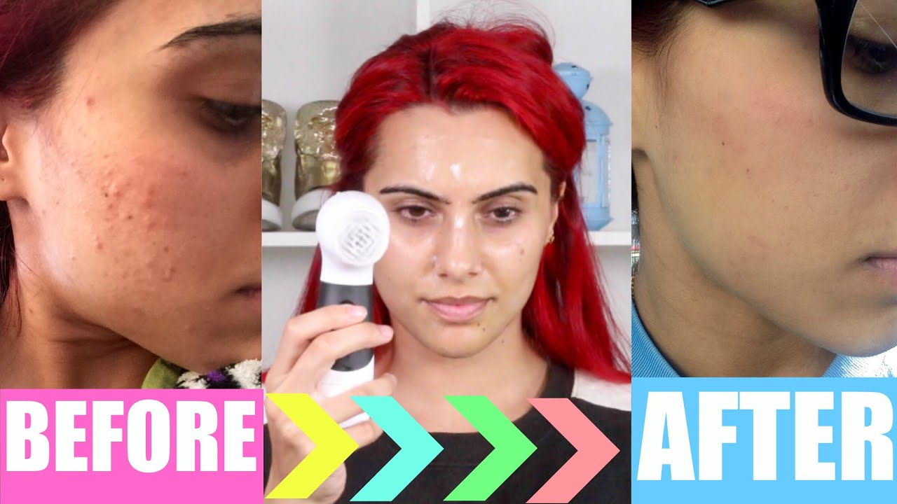 My Skin Care Routine For Clean Amp Clear Acne Free Skin