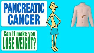 Pancreatic cancer - Can it Make You Lose Weight?