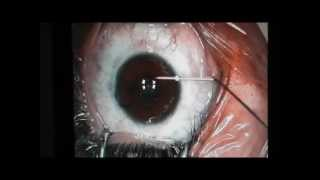 How to get rid of your glasses!!!! Demonstration of laser eye surgery