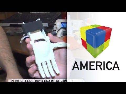 Un padre montó una impresora 3D para fabricarle una prótesis a su hijo