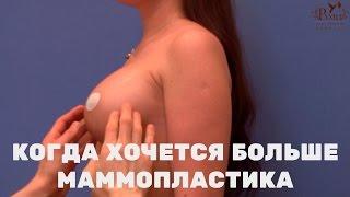 Когда хочется больше | операция увеличение груди
