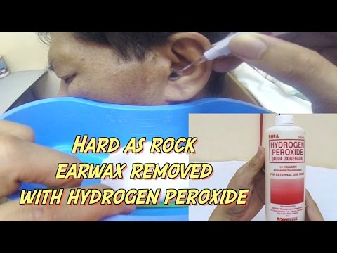 Hard as Rock Earwax Removal using Hydrogen Peroxide