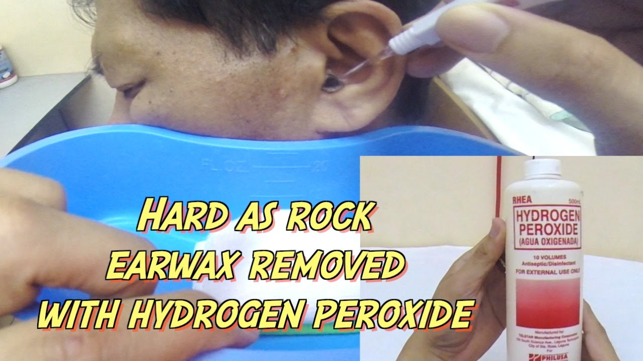 How to clean ears wax with hydrogen peroxide