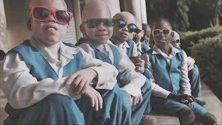 Evento White is beautiful. Help Albino African Children. 03/04/16