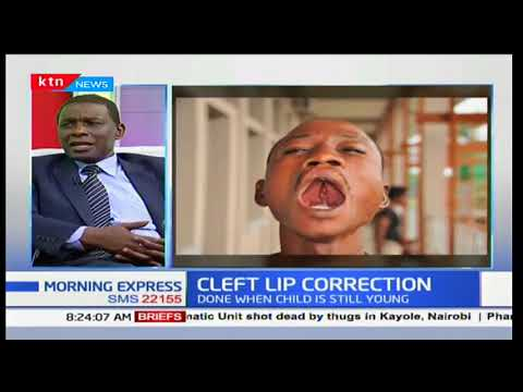 The mystery that is cleft lip; causes and reconstruction: Your Health