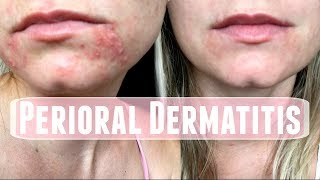 Perioral Dermatitis. How I treated it