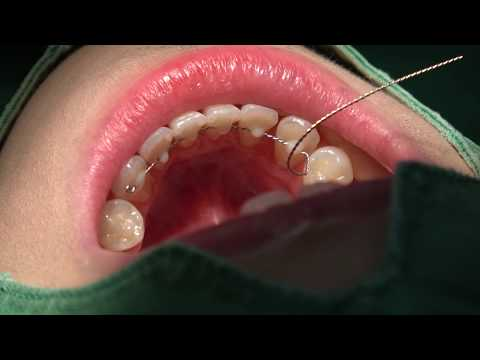 Bonded lingual fixed retainer in 10 min