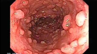 Caso de Poliposis Familiar con dos cánceres de colon y Recto