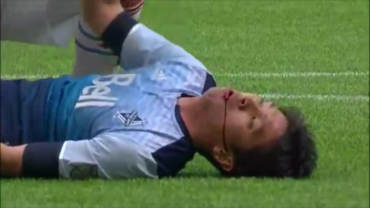Football Players who nearly DIED on the field | Tragic ...