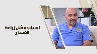 د. خالد عبيدات - اسباب فشل زراعة الاسنان