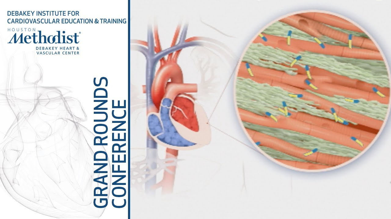 Cardiac Amyloidosis: Brave New World! (Martha Grogan, MD) May 23, 2019