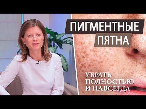 Пигментные пятна на лице - как избавиться (при беременности \ после родов \ после 40 лет)
