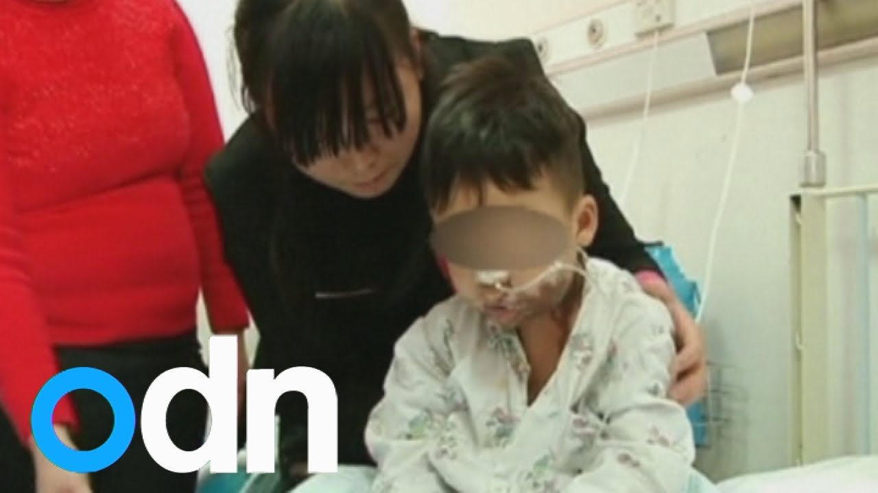 Toddler suffers horrific burns after drinking sulfuric ...