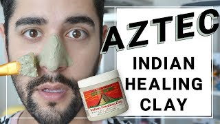 Aztec Indian Healing Clay Mask First Impressions! Remove Acne + Blackheads ✖ James Welsh