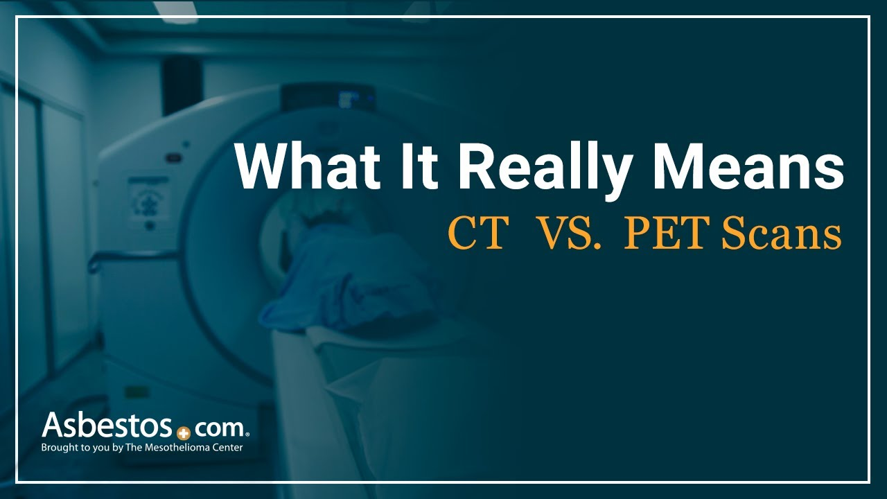 CT vs. PET Scans for Mesothelioma Patients