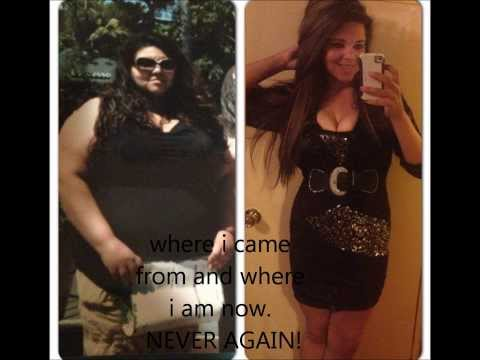 Gastric Bypass surgey before and after 1 year