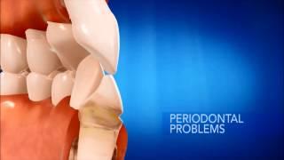 Gingivitis vs Gum Disease - Garden City Dentist