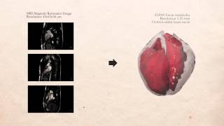 Alya Red -- A Large Scale Simulator Of The Human Heart