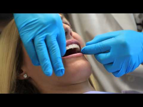 Teeth whitening trays dentist uk