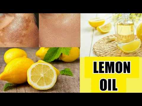 HOW TO REMOVE DARK SPOTS, PIGMENTATION, ACNE SCARS NATURALLY| DIY LEMON  ESSENTIAL OIL| soniiworld
