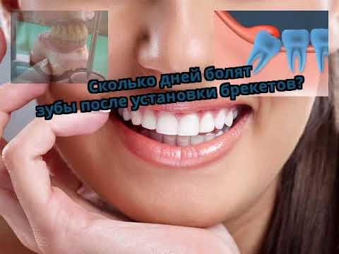 Если после установки брекетов зубы не болят
