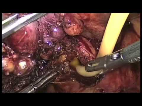 Download CBD EXPLORATION,REMOVAL OF 4cm stone ,insertion of T -TUBE