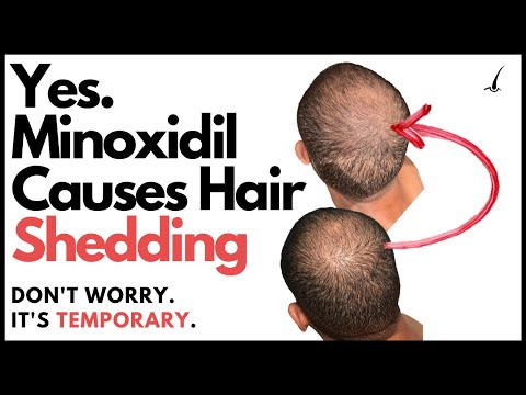 does-minoxidil-make-you-go-bald?-the-truth-about-minoxidil-hair-shedding-phase