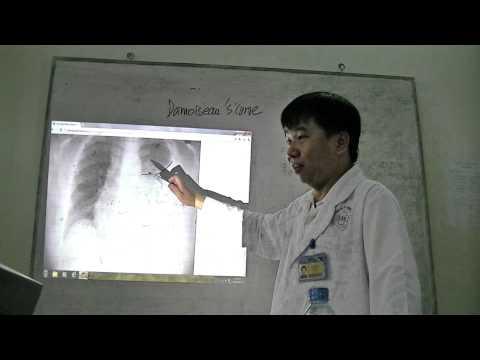 20120511_Đọc X-quang tràn dịch màng phổi