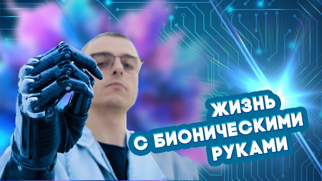 """Звезда TikTok Константин """"Киборг"""" Дебликов о жизни с протезами"""