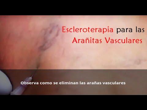 arañas vasculares tratamiento con espuma