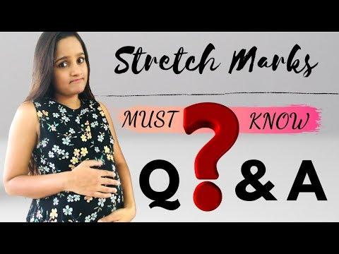 Stretch Marks - The Biggest Nightmare In Pregnancy | Top 5 FAQ | TruptWellness