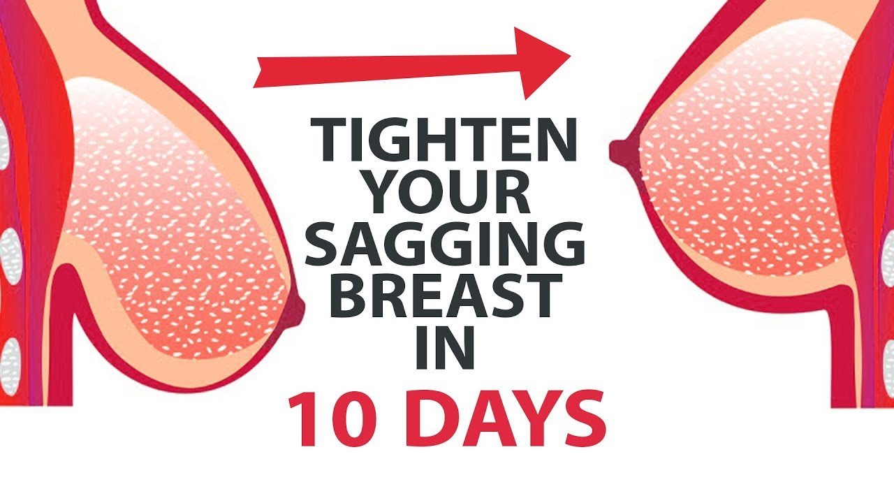 Firming up saggy breasts after breastfeeding