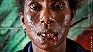 Living cannibal victim in Papua New Guinea