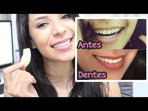 Como Clarear Os Dentes Youtube