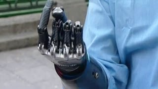 Человек-киборг приехал в Москву. Бионическая рука.