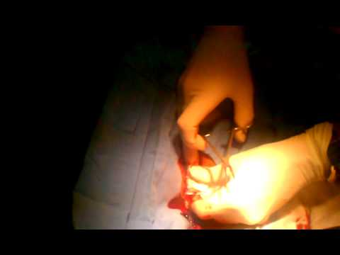 Lancing huge cyst