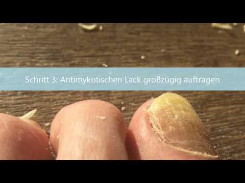 Candida Albicans Behandlung - Symptome, Therapie und Testиз YouTube · Длительность: 2 мин28 с