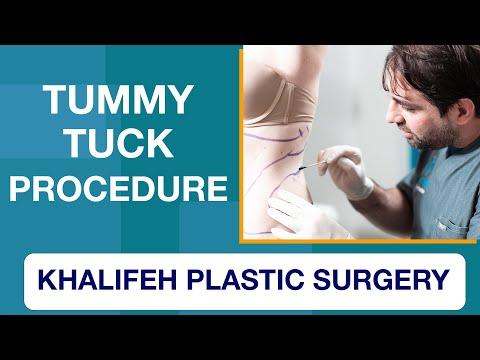Dr. Khalifeh Plastic Surgery - Tummy Tuck Procedure Demonstration - Smartlipo