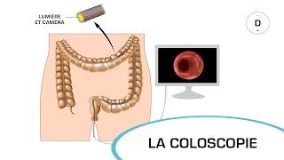La coloscopie - Examens médicaux